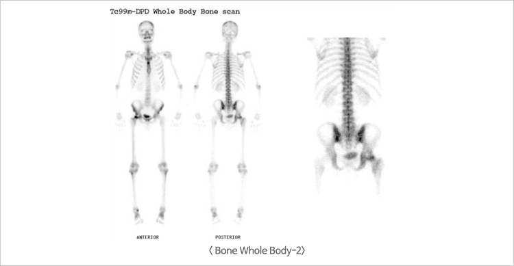 Bone Whole Body-2